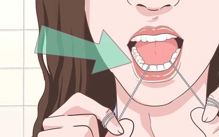 حداقل-یکبار-در-روز-دندانهای-خود-را-با-نخ-دندان-تمیز-کنید
