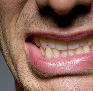 فشار-دادن-دندانها-روی-هم-یا-دندان-قروچه