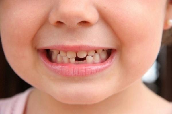 چرا ایمپلنت برای کودکان مناسب نیست؟