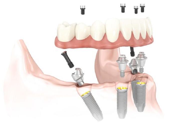 کاشت دندان به روش all-on-4 چه تفاوت هایی با ایمپلت متداول دارد؟
