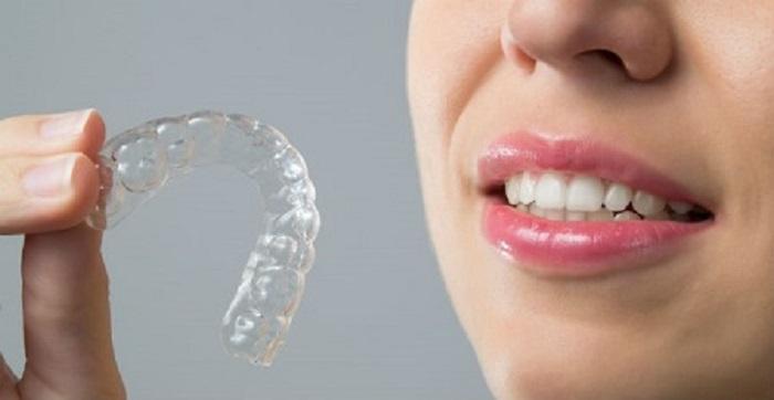 مزایای و معایب ارتودنسی متحرک برای ردیف و مرتب کردن دندان ها