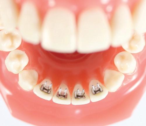 میخهای پشت دندانی