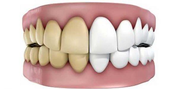 بلیچینگ دندان چگونه است؟ انواع راه های سفید کردن دندان ها-compressed