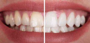 راه_های رفع زردی دندان -compressed