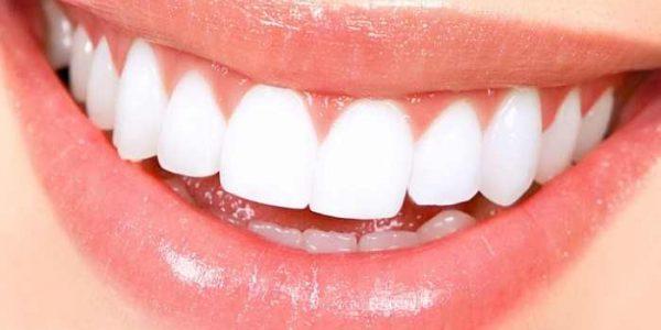 قیمت بلیچینگ دندان چقدر است؟ هزینه روشهای سفید کردن دندان-compressed