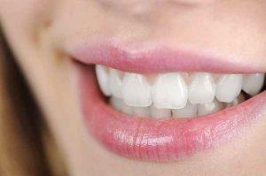 مراقبت_های بعد از رفع زردی دندان-compressed
