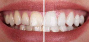 هزینه_های سفید کردن دندان -compressed