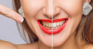۶ مورد از دلایل زرد شدن رنگ دندان-compressed
