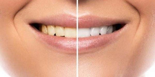 برای سفید کردن دندان چه باید کرد؟ انواع روش های بلیچینگ دندان