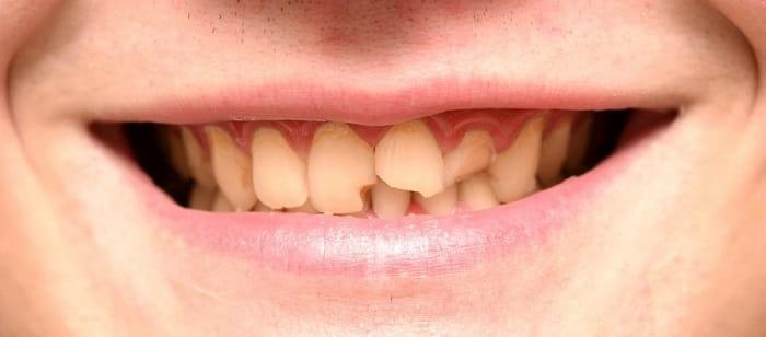اصلاح شکستگی دندان با روکش دندان