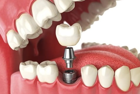 ایمپلنت دندانی که ظاهری شبیه دندان واقعی دارد