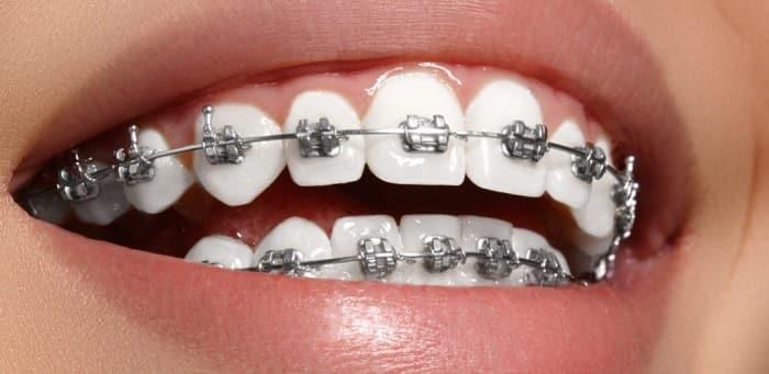بریسهای فلزی دندان
