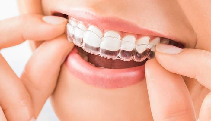 بریس اینویزالاین دندان