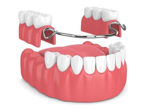 دندان مصنوعی تکهای