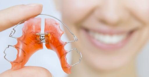 نگهدارندهها دندان