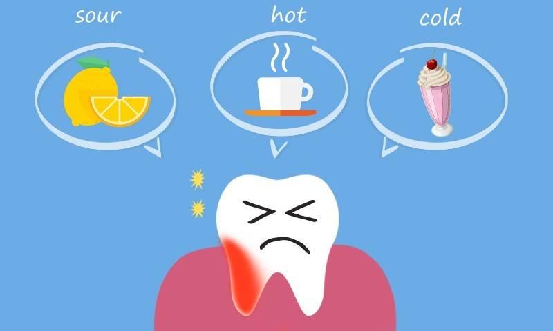 حساسیت دندان ها