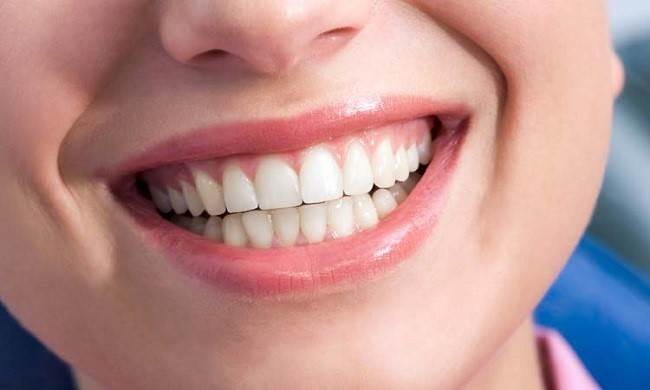 راه های رفع درد بعد از بلیچینگ دندان