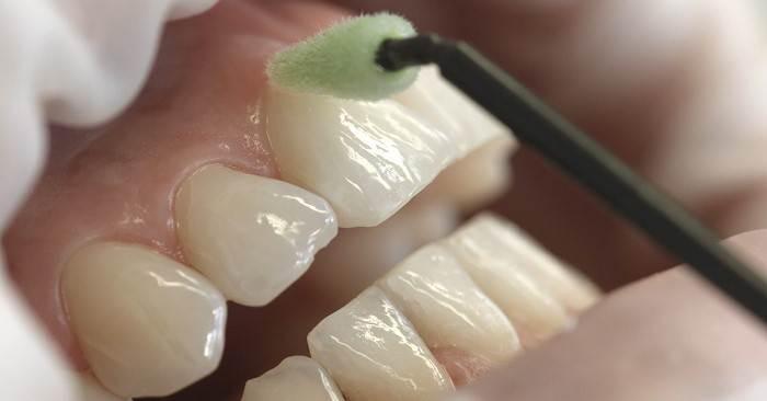 مزایای وارنیش دندانها