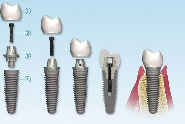 کاشت ایمپلنت دندان چگونه انجام میشود؟