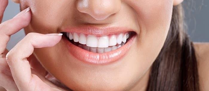 لومینیرز دندان