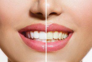 کاربرد فیسینگ دندان (ونیر)