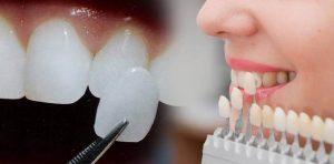 کدام نوع فیسینگ دندان بهتر است